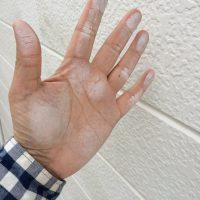 チョーキングをおこしてました。手真っ白です。